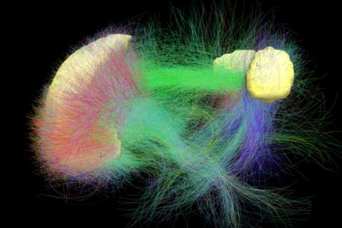 Ricostruzione della connettività strutturale del circuito di default. I diversi colori indicano la direzionalità delle fibre: rosso = destra/sinistra, verde = avanti /indietro, blu = sotto/sopra. La sezione del cervello rappresentata in questa immagine e quella della parte sinistra della prima mmagine coincidono.