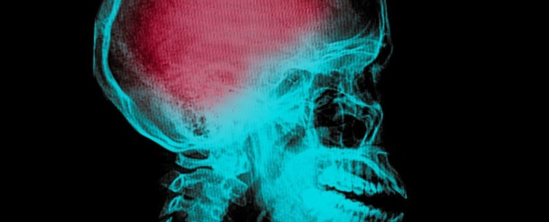 Pazienti colpiti da ictus tornano a muoversi con iniezione cellule staminali