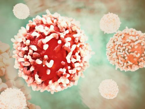 Scioglie il tumore con un ago incandescente: ecco la termoablazione mediante microonde
