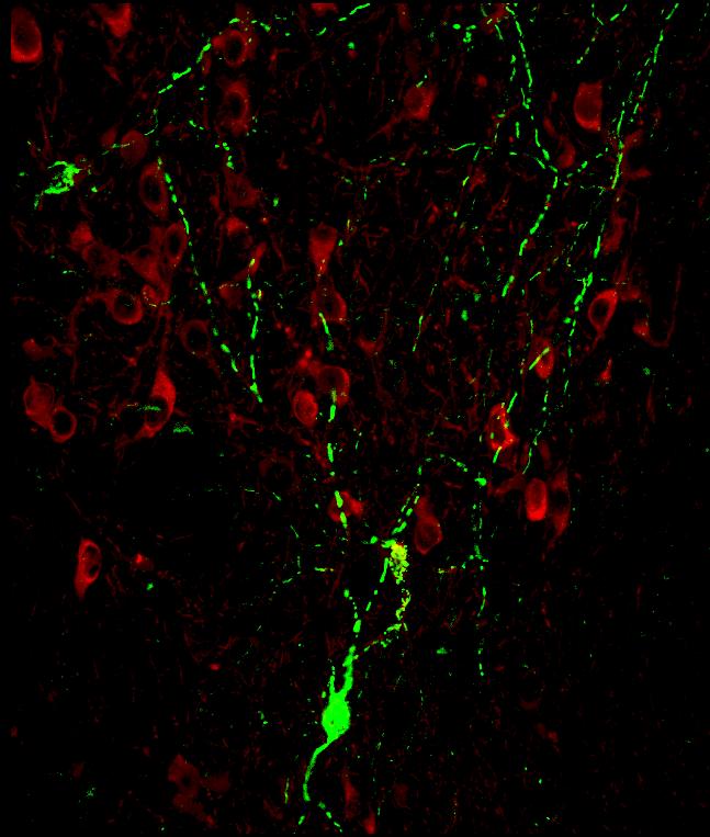 Aggiustare i mitocondri per curare le malattie