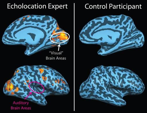 Ecolocazione: anche i ciechi hanno un sonar biologico per orientarsi nello spazio