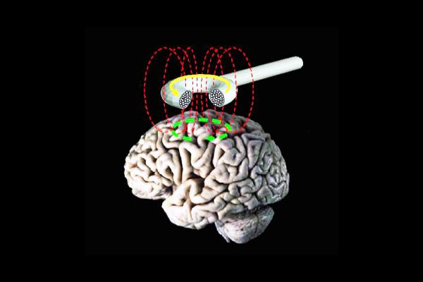TMS e depressione: un possibile approccio terapeutico?