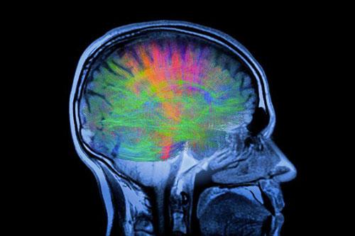 Parkinson, terapia genica fa crescere nuovi circuiti cerebrali